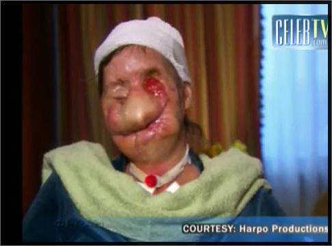 charla nash visage